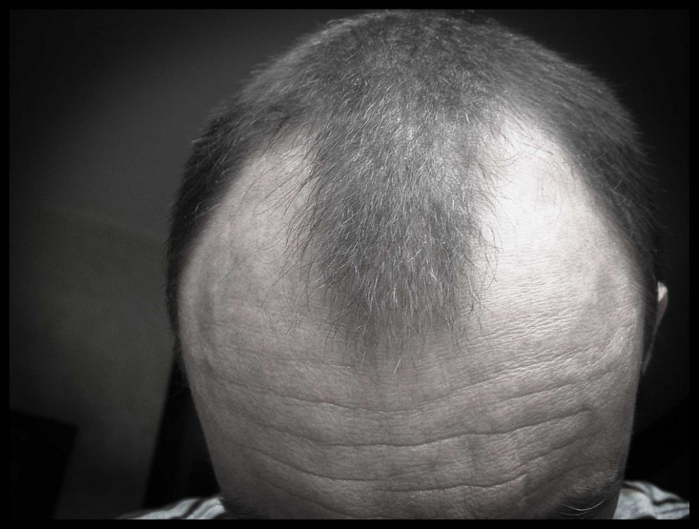 Regrow and stop baldness with effective solutions for your hair